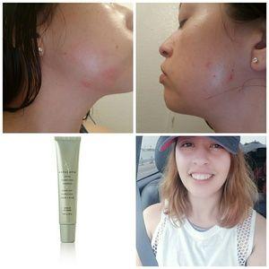 Acne Clarifying Complex